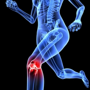 Why runner's knee is sexist